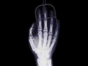 Новые рентгены и аппараты УЗИ появятся в детских больницах Нижегородской области